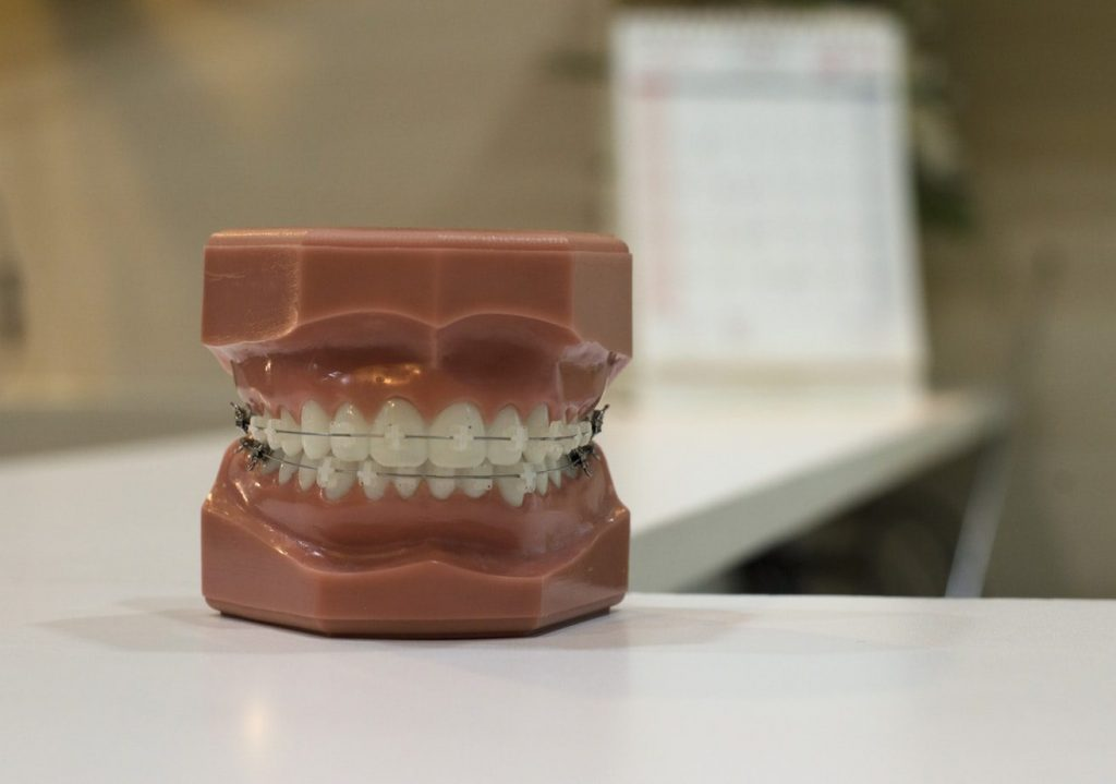 Best Denture Adhesives 2019 - Reviews & Buyer's Guide